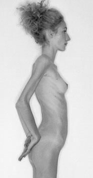 Immagini, l'anoressica sedicenne Bianca