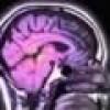 Lo spazio-cervello