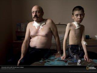 Vittime di Chernobyl dopo intervento chirurgico per rimozione cancro alla tiroide