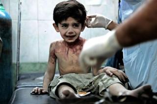 Cure a un bambino siriano